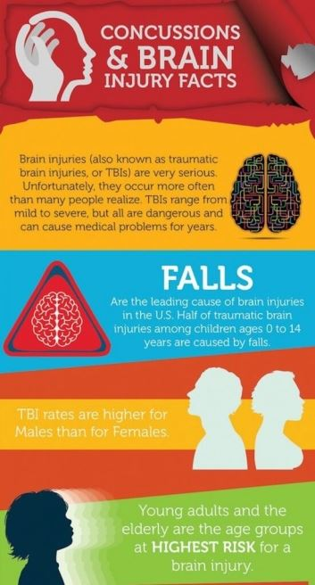 Infographic - Concussion Facts